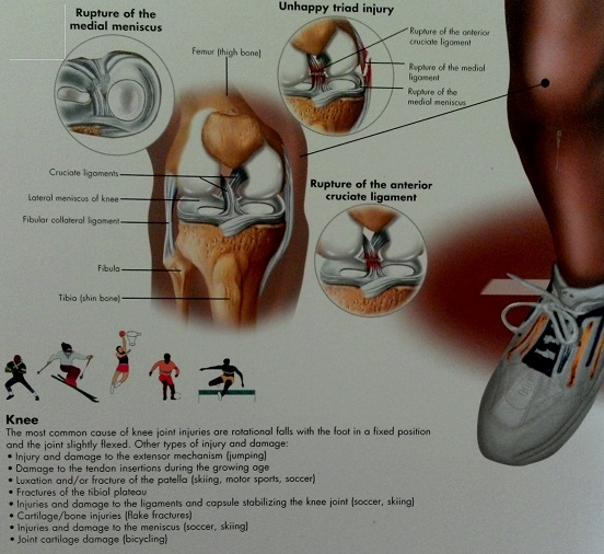 Common sports injuries on the knee