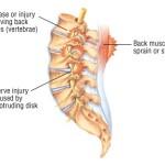back pain1